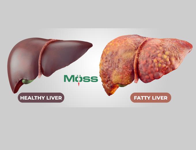 So sánh gan bình thường (trái) và gan nhiễm mỡ (phải)