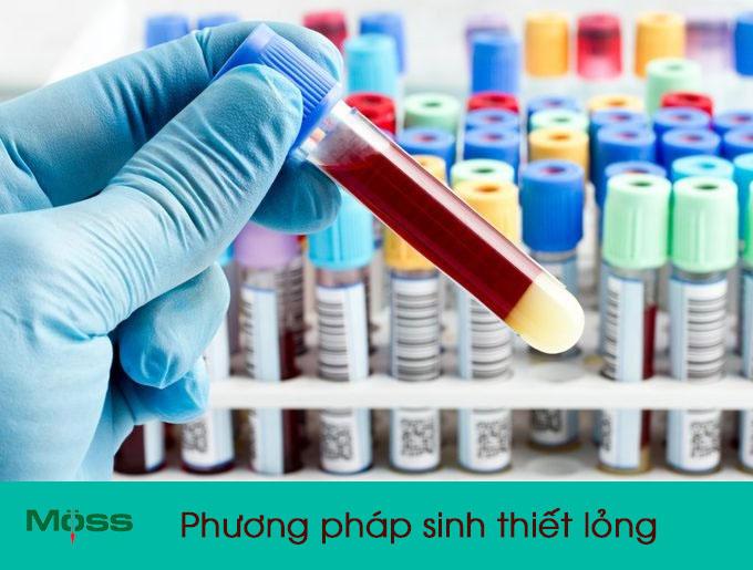 Phương pháp sinh thiết lỏng được sử dụng hiện nay
